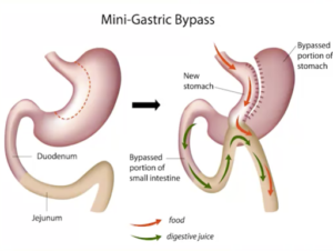 mini bypass gastrico