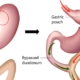 bypass gastrico