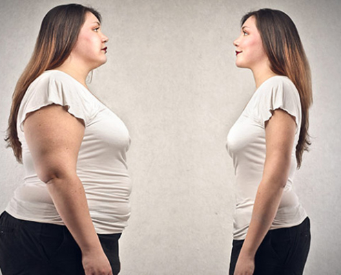 Chirurgia dell'obesità Porto Viro