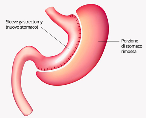 sleeve gastrectomy operazione